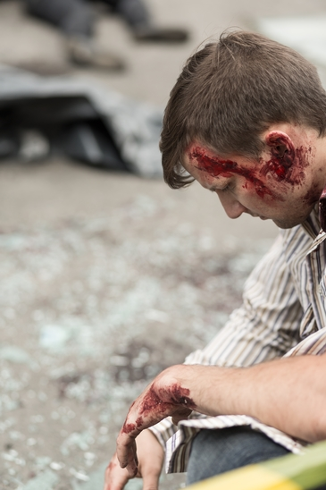 Injured man with bloody head wound.